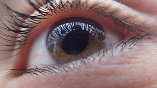 Eye, eye! Why are we being ripped off in the UK over cataract surgery?